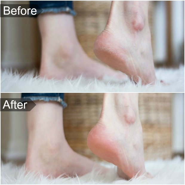 Micro Pedi Review before and after